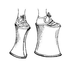Very high platform-soled shoes worn by women throughout Italy and in northern Europe during the Renaissance; soles were especially high in Venice