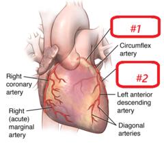 #1- left coronary artery #2- left marginal artery