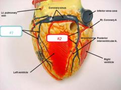 #1-posterior cardiac vein #2- middle cardiac vein