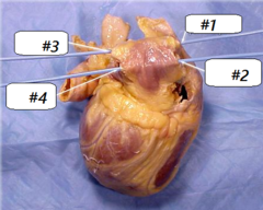 #1-right superior pulmonary vein #2-right inferior pulmonary vein #3-left superior pulmonary vein #4-left inferior pulmonary vein