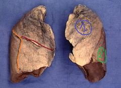 #1-superior lobe of left lung #2-inferior lobe of left lung