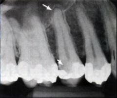 Acute Apical Periodontitis