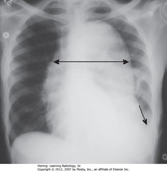 AORTIC DISSECTION • DBA: widened mediastinum • SBA: L pleural effusion • Widened mediastinum + L pleural effusion in pt w/chest pain - signs of aortic dissection