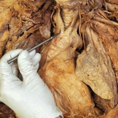 brachiocephalic trunk