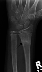 Buckle Fx (aka Torus, Impaction Fx from FOOSH injury on distal Radial metaphysis)