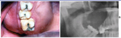 Calcifying Odontogenic Cyst