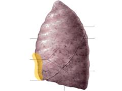cardiac notch of left lung