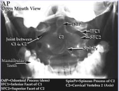 Cervical Spine - AP Open Mouth