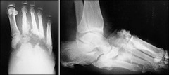 Charcot Arthropathy (Neuropathic Joint destruction, usually insidious onset in Diabetics)