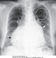 CHRONIC MS WITH TR • Enlarged LA (SWA) • UL vessels more prominent - pulmonary venous HTN redistributing flow in lungs (WC) • RH changes from PA HTN, leading to TR w/enlarged RA (SBA)