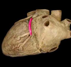 circumflex artery