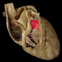 conus arteriosus of right ventricle