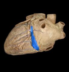 coronary sinus