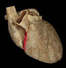 coronary sulcus