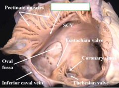 crista terminalis of right atrium