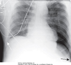 DEEP SULCUS SIGN • SBA: When supine, air in large PTX collects anteriorly/inferiorly in thorax, manifests by displacing costophrenic sulcus inferiorly, while producing increased lucency of that sulcus (deep sulcus sign) • Sign of PTX on supine CXR • SWA: right sulcus - not as low as L costophrenic sulcus
