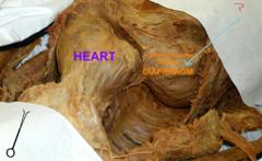 diaphragmatic pleura