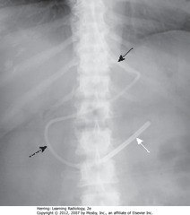 DOBBHOFF IN DUODENUM • Tip should be in duodenum  • SWA: weighted, metallic end • SBA: Dobhoff enters stomach • DBA: duodenal sweep • SBA: junction of L Hd and L side of thoracic spine (L cardiophrenic angle) - usual place