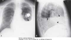 DRESSLER SYNDROME (POSTPERICARDITIS/POST-MI SYNDROME) • SBAs: L pleural effusion • 2-3w after transmural MI or pericardiotomy (CABG) • CP + fever + L pleural effusion + patchy LLL airspace disease + pericardial effusion several weeks post-MI or CABG • DBAs: pacer leads in RA • Arrowhead: pacer leads in RV