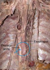 esophageal artery