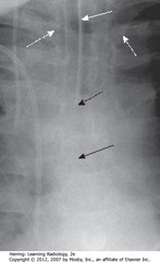 ETT IN SATISFACTORY POSITION • SWA: radioopaque marker stripe of ETT (usually wide-bore - 1 cm), no side holes • DBA: diagonal tip of ETT • SBA: carina - with head in neutral position, ETT tib should be 3-5 cm away (half distance between medial ends of clavicles and carina • DWAs: medial ends of clavicles