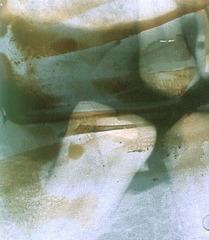 failure to remove fixer- thisulfate