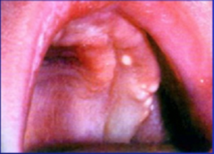Gingival (alveolar) Cyst of the newborn