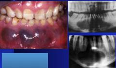 Glandular Odontogenic Cyst