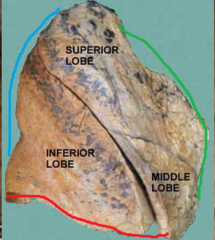 green line = anterior border of the right lung red line = inferior border of right lung blue line = posterior border of right lung