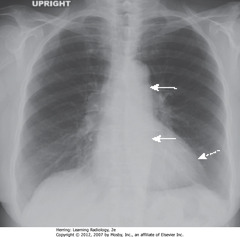 HYPERTENSIVE CV DISEASE • Hypertrophic cardiomyopathy • DWA: LV slightly enlarged, but other modalities would demonstrate marked concentric hypertrophy of LV wall that has occurred at the expense of the lumen • SWA: uncoiled aorta, from increased systemic BP