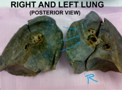 impression for SVC on right lung  key: look for apex of the lung, identify impressions from there