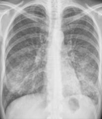 Interstitial Pneumonia