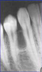 Lateral Periodontal Cyst