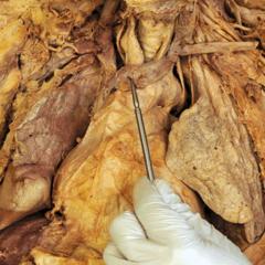 left brachiocephalic vein