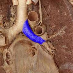 left primary bronchus