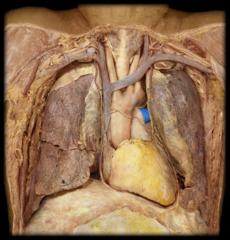 left pulmonary artery (right pulmonary artery passes inferior to aortic arch)