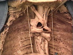 left vagus nerve (wraps around aortic arch *anteriorly*; l. recurrent laryngeal emerges posteriorly behind the arch); right vagus nerve simply wraps around subclavian artery