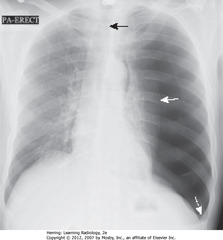 LG LEFT-SIDED TENSION PTX • SWA: L lung almost totally compressed • SBA: trachea; trachea and heart shifted to right • DWA: L Hd depressed due to increased L intrathoracic pressure