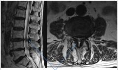 Ligamentum Flavum Thickening, & MRI