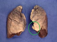 lingula of lung