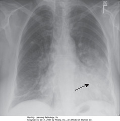 LINGULAR PNA • Airspace in lingular segments of LUL • Homogeneous density • SBA: L lateral border of heart silhouetted by fluid density of consolidated UL with heart