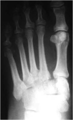 Lisfranc Fracture/dislocation
