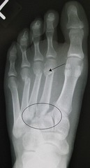 Lisfranc Fx (Metatarsal displaced from Tarsus - rarely heals fully)