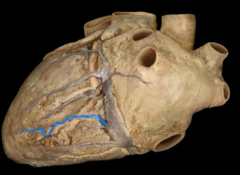 middle cardiac vein in  in posterior interventricular sulcus