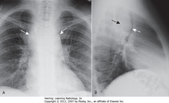 MIDDLE MEDIASTINAL LYMPHADENOPATHY • A - SWA: mediastinal mass • B - SBA: mediastinal mass • B - DWA: mass pushing trachea forward • Lymphoma = MCC adenopathy in middle mediastinum • Also produced by other malignancies (small cell lung carcinoma, metastatic disease, several benign diseases)