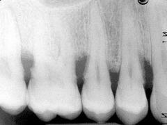 moderate bone loss