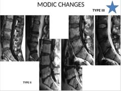 MODIC CHANGES Type III
