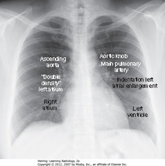 NORMAL CARDIAC CONTOURS • 7 identifiable cardiac contours on the frontal chest radiograph. 1. R side of heart: first contour = low-density, almost straight edge visible just lateral to trachea, reflecting size of ascending aorta 2. Slight indentation where contour of ascending aorta meets contour of RA, where LA may appear when it enlarges 3. RH border formed by RA 4. First left contour = aortic knob, formed by foreshortened aortic arch superimposed on part of proximal descending aorta 5. Next contour below aortic knob is main pulmonary artery, before it divides into R & L pulmonary artery 6. Just below main pulmonary artery segment, normally a slight indentation where enlarged LA may appear on L side of heart 7. LV forms last contour of heart on the left • Descending aorta almost disappears with shadow of spine