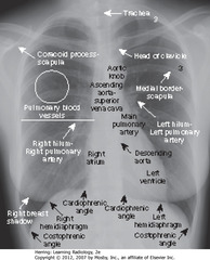 NORMAL CHEST • Spine seen through heart shadow • R, L lateral costophrenic angles sharply, acutely angled • WL: level of minor/horizontal fissure, usually visible on frontal view (seen en face); no minor fissure on L side • WC: lung markings (BVs); L hilum higher • White