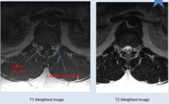 NORMAL MRI LUMBAR SPINE - cont 2